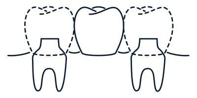 bridge - the dental studio