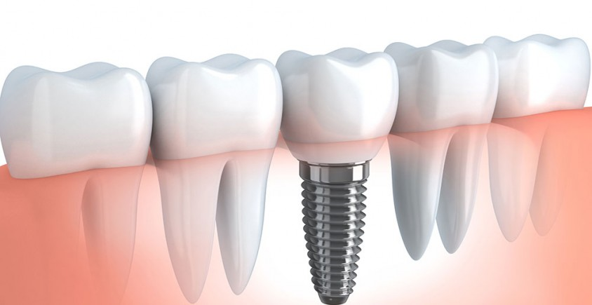 Dental Implants at The Dental Studio