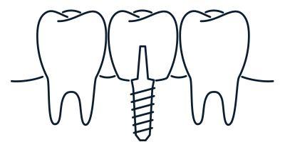 implant - the dental studio